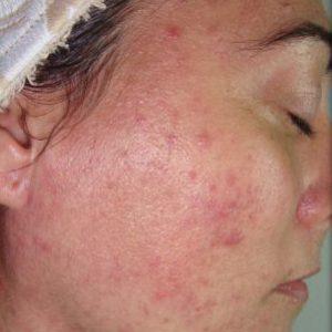 acne-antes-salud-y-laser-oevzqh6k63dtwzda5qhu9lbna2y9sil9ge84acwzaw